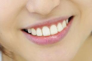 矯正歯科のイメージ