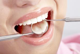 一般歯科のイメージ
